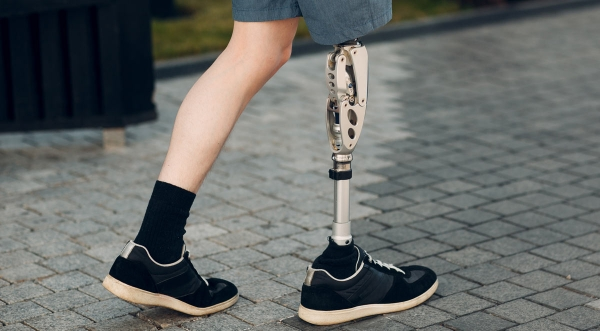 Five Resources for Adjusting to Life with an Artificial Limb
